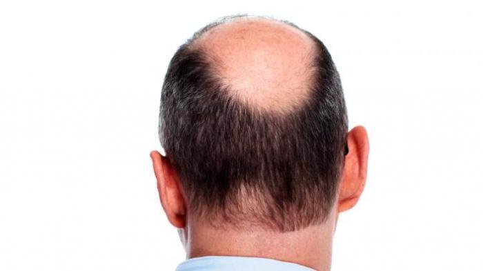 Tips mengatasi rambut rontok menggunakan minoxidil 5%